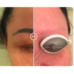Say Goodbye to Your Eyebrow Tattoos