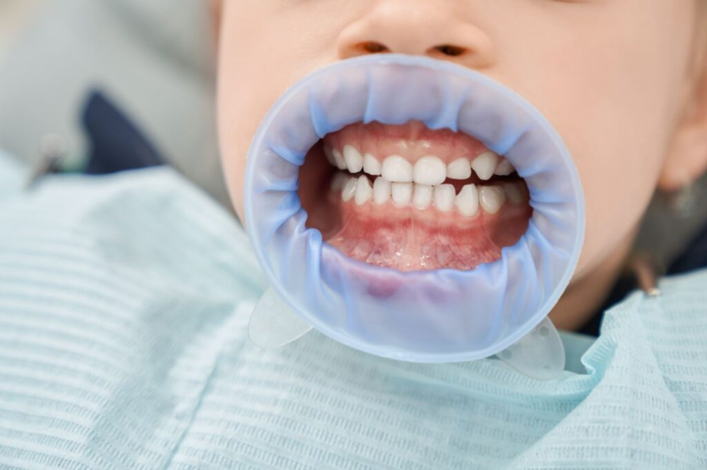 50% Of Children Have Missed Dental Appointments During Pandemic